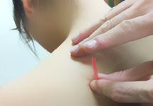 肩こり・腰痛の仕上げの鍼施術
